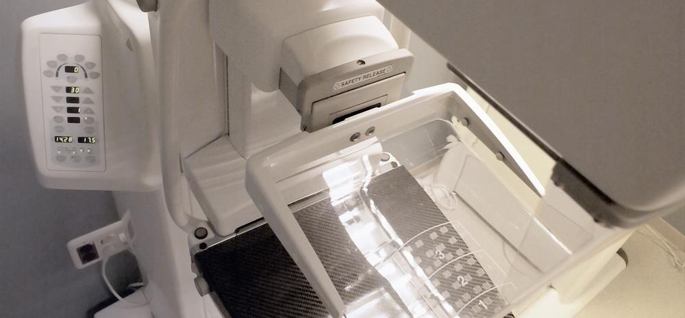 Maquina Mamografia CEDIV, Granollers
